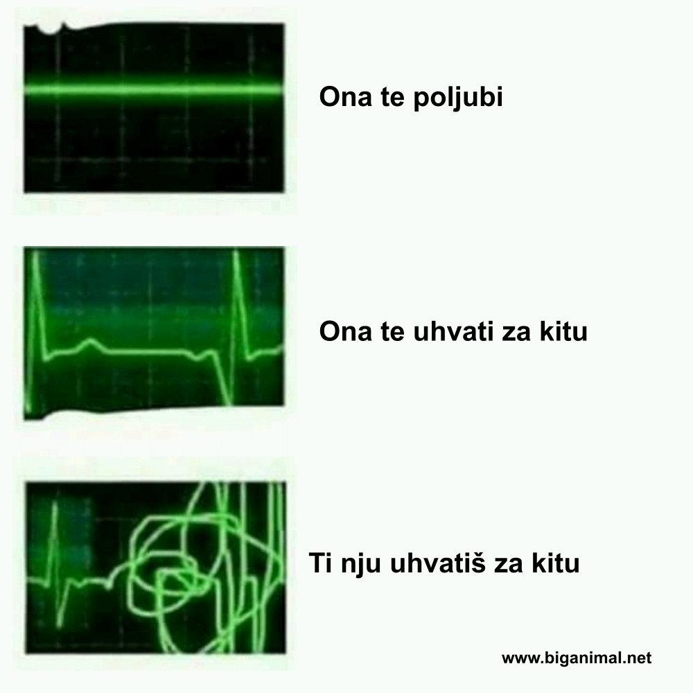 EKG pravog muškarca